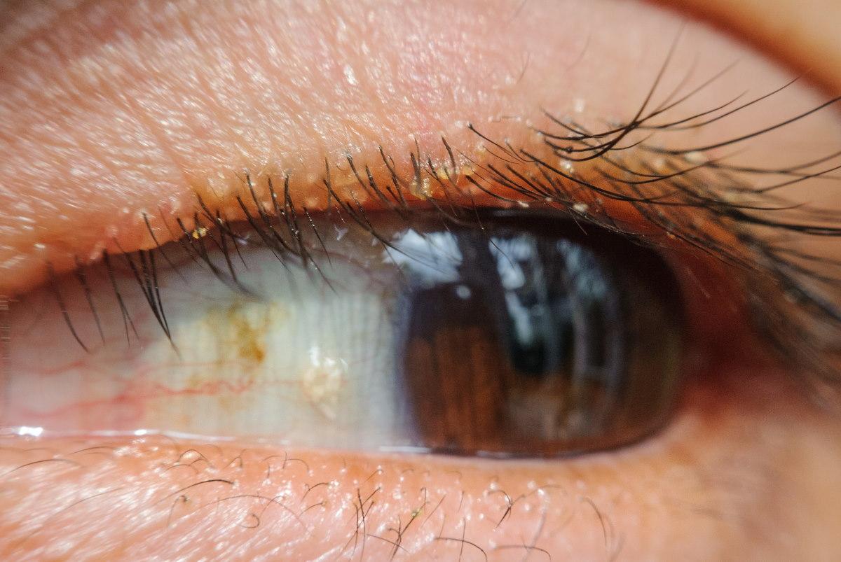 Blepharitis Treatment Dry Eye Treatment Baltimore